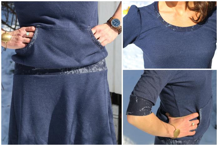 Skippy dress details collage